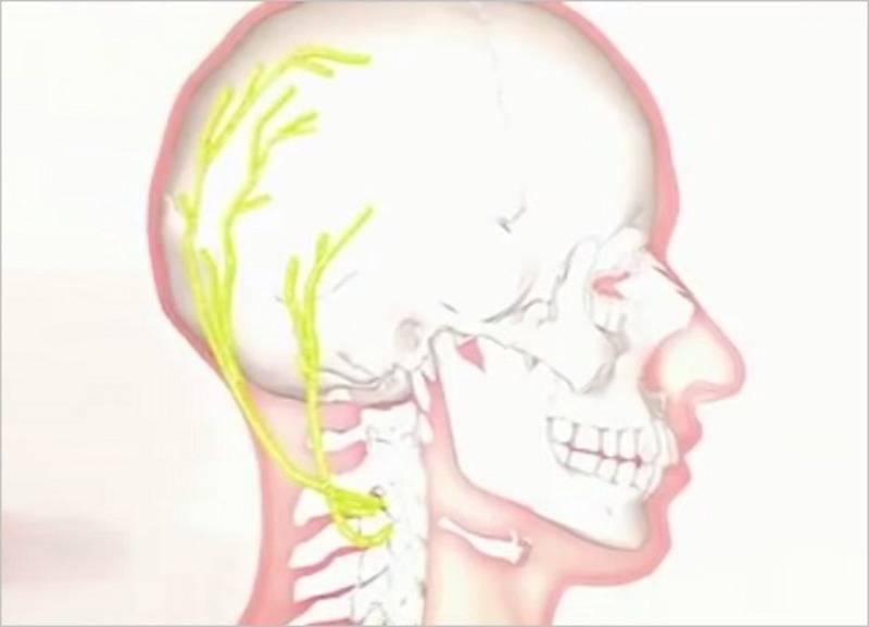 невралгия большого затылочного нерва