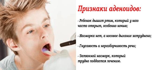 аденоидит 2 3 степени у детей лечение