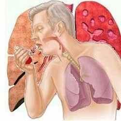 кашель курильщика с мокротой