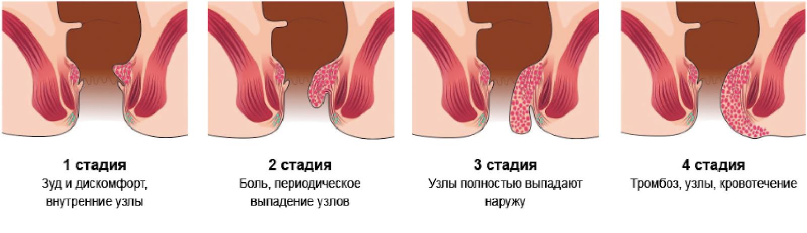 Лечение геморроя 4 степени