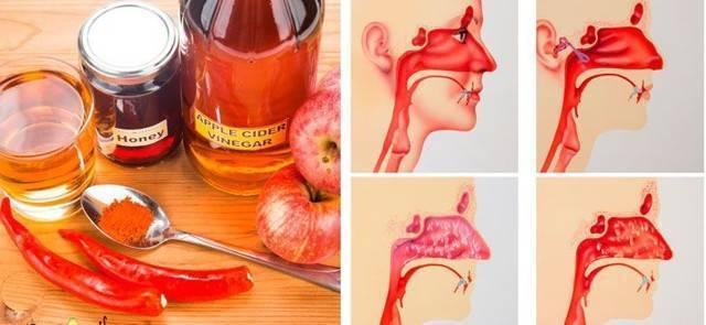 Полоскание горла уксусом яблочным: как приготовить раствор