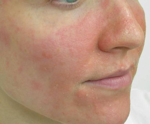 дерматит лица