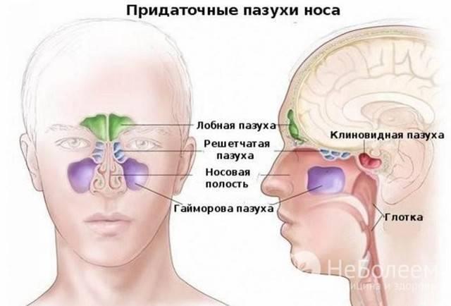 В чем же разница между гайморитом и синуситом?