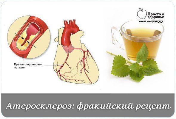 Соблюдаем диету при атеросклерозе сосудов: рецепты здорового меню
