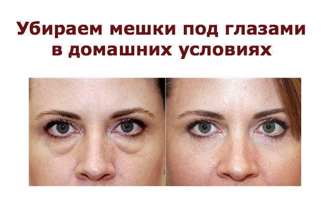 Причины тёмных кругов под глазами и способы как их убрать