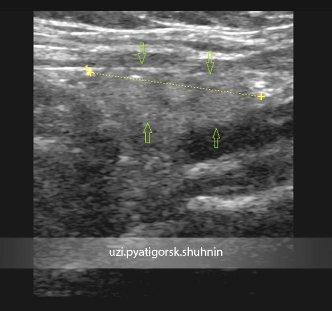 Что необходимо знать о гипотрофии щитовидной железы? дистрофия и атрофия щитовидной железы у взрослых гипертрофия левой доли щитовидной железы.
