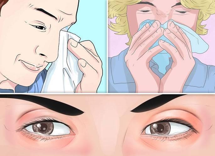 чешется в носу и чихаю