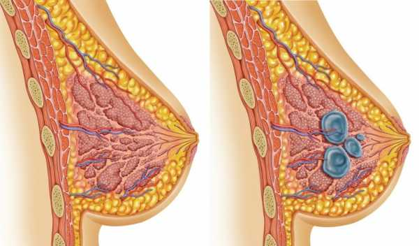 Климакс болит грудь препараты