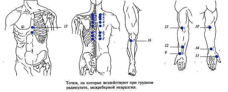 точечный массаж при межреберной невралгии точки