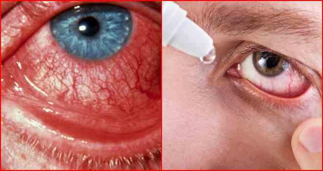 Покраснение глаз - причины и лечение в домашних условиях
