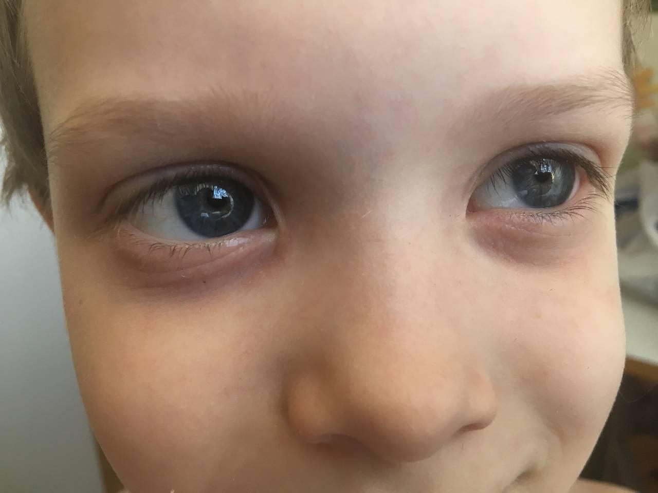 у ребенка отек глаз