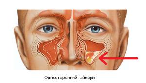 Хронический и острый гнойный синусит: симптомы, лечение, осложнения