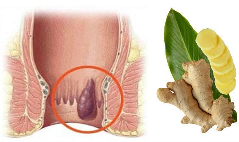 Внутренний геморрой - первые признаки и симптомы, лечение, препараты и операция | здрав-лаб