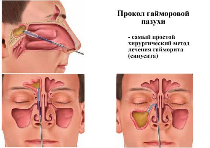 Лечение синусита в домашних условиях: обзор средств