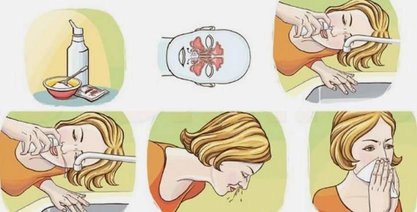 Промывание носа в домашних условиях у детей и взрослых - средства и растворы, показания и противопоказания