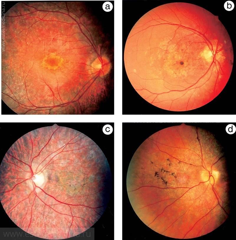 Чем опасна дистрофия сетчатки глаза и как распознать патологию?