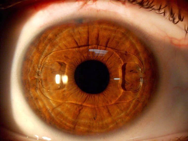Операция по замене хрусталика глаза: суть, показания, реабилитация