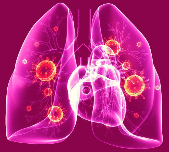 Пневмоцистоз – маркер вич-инфекции