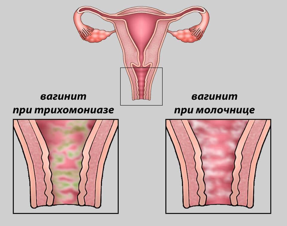 Трихомонада при беременности и родах: влияние, последствия