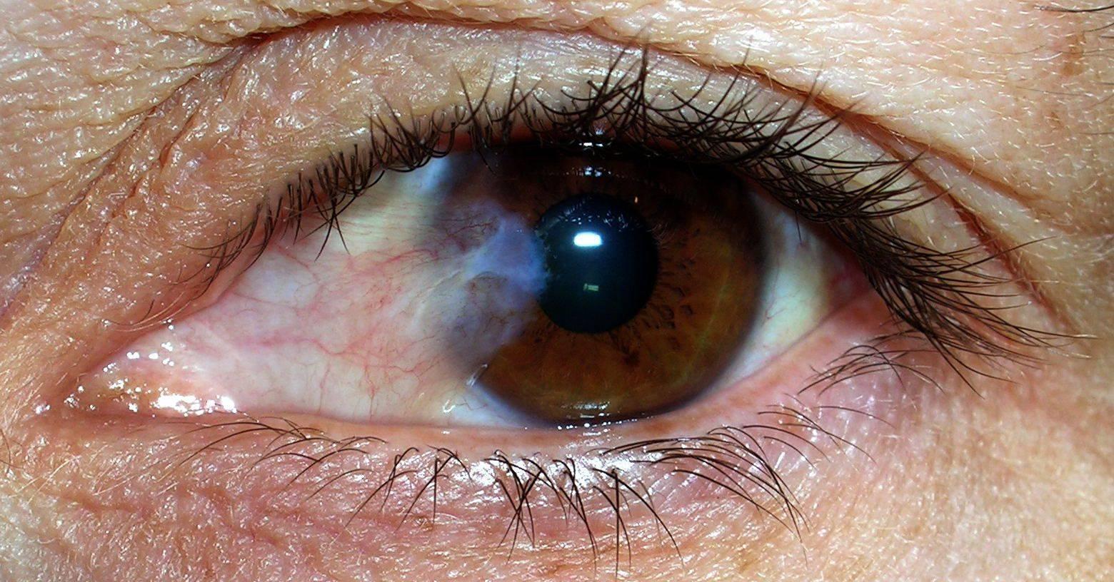 пленка на глазах у человека