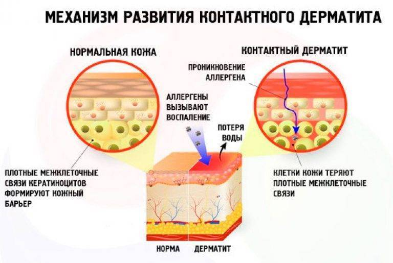 Заразен или нет дерматит у детей, передается ли по наследству атопический, периоральный, контактный вид