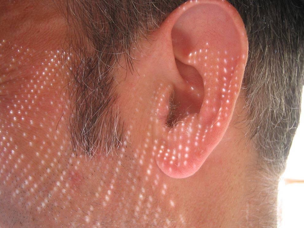 Чем лечить псориаз в ухе: прчины, симптомы, основные методы лечения заболевания ушных раковин, а также фото