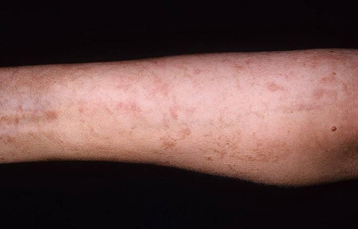 Солнечный дерматит у ребенка