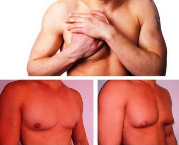 Что такое гинекомастия и как она проявляется