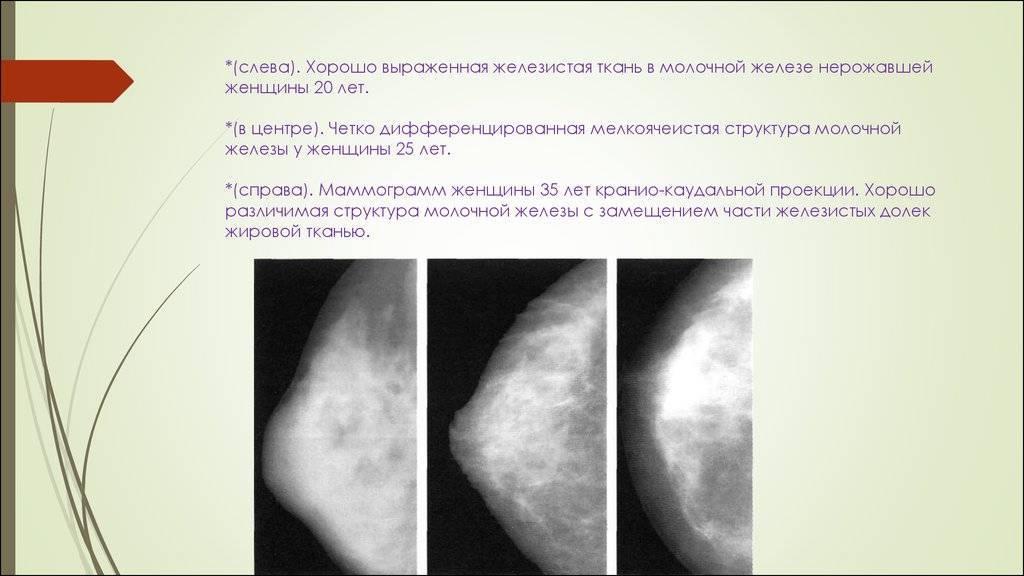 Узловые образования молочной железы что это такое