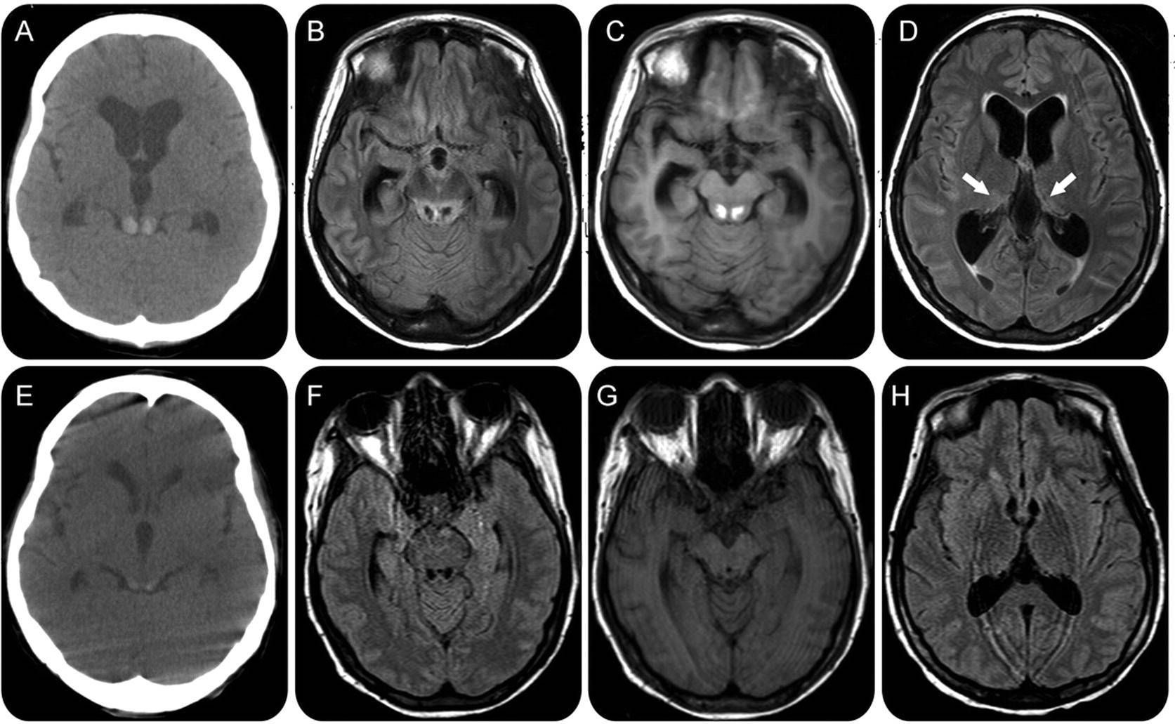 Энцефалопатия головного мозга: что это такое и как лечить — спросиврача