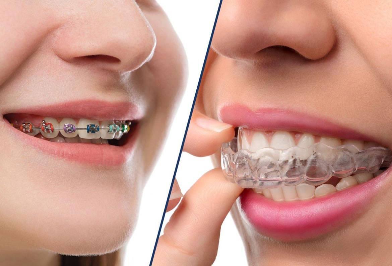 Какой врач ставит брекеты на зубы