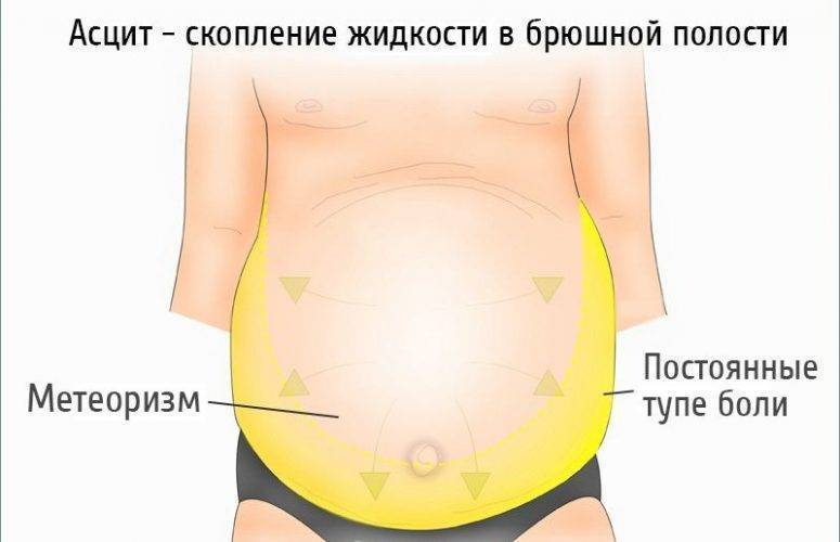 Асцит при циррозе печени