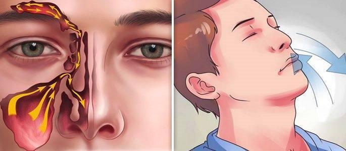 постоянно заложена то одна то другая ноздря