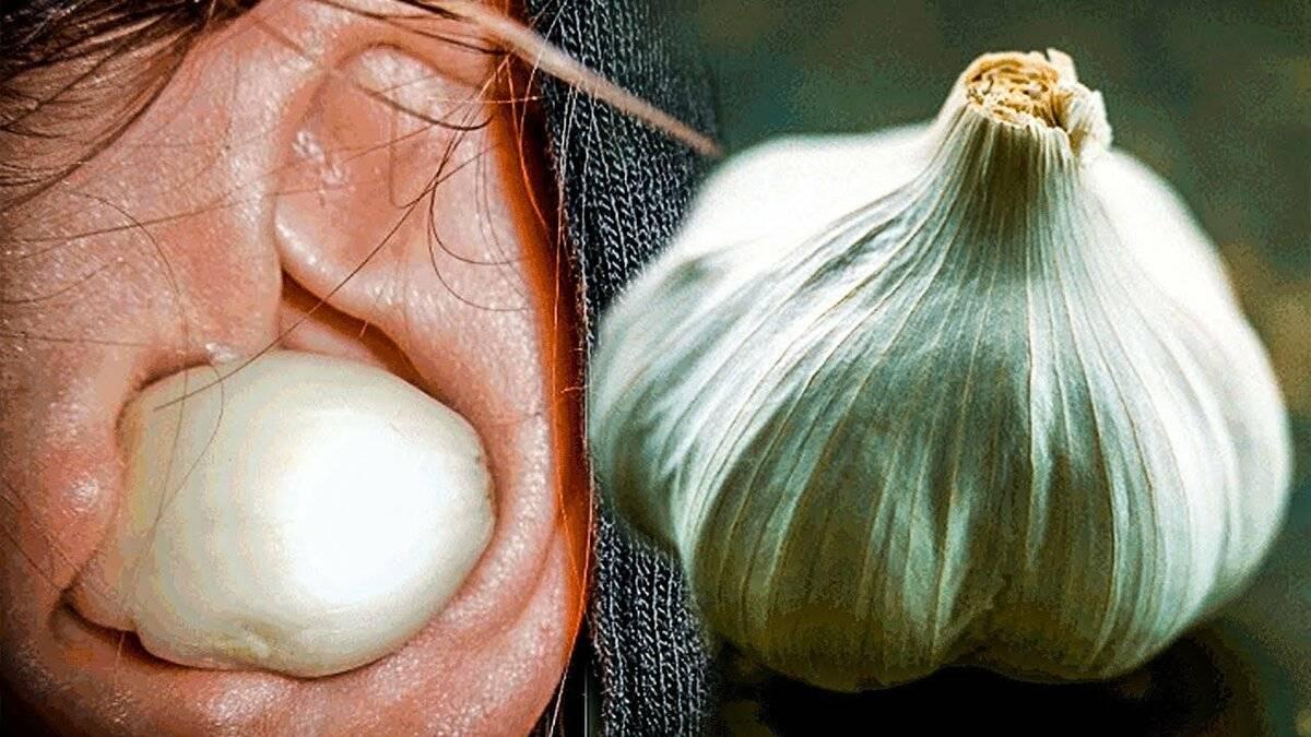 Что будет, если положить кусочек лука в ухо