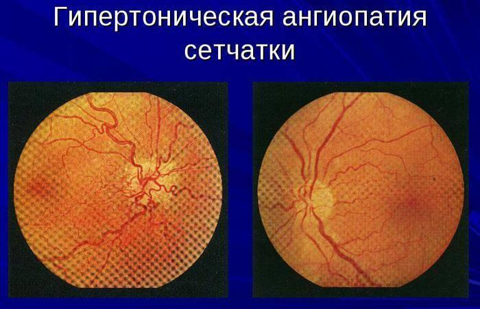 Гипертоническая ангиопатия сетчатки обоих глаз: что это такое, признаки