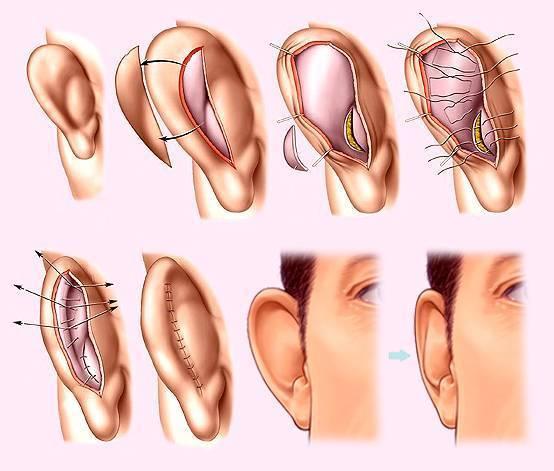 Пластика ушей: методы, последствия, осложнения