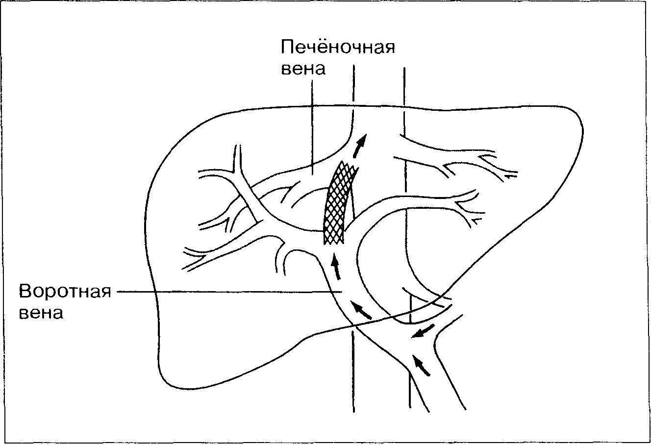 Воротная вена — большая медицинская энциклопедия