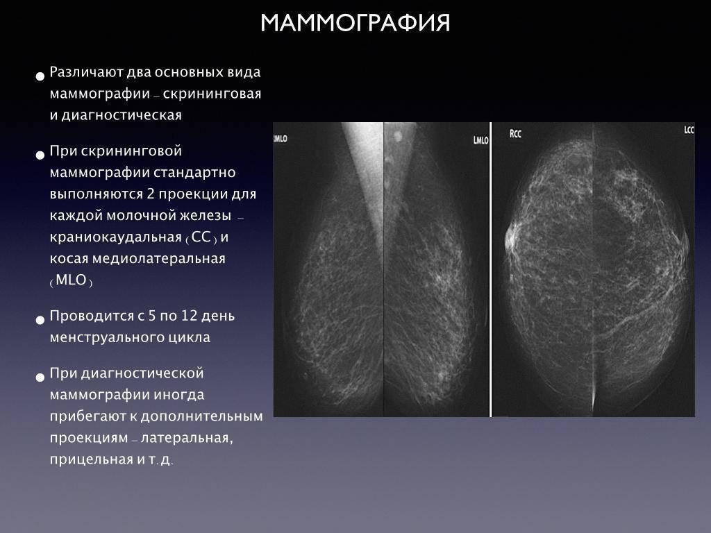 маммолог на какой день цикла