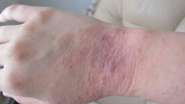Зуд при аллергическом дерматите — как лечить?