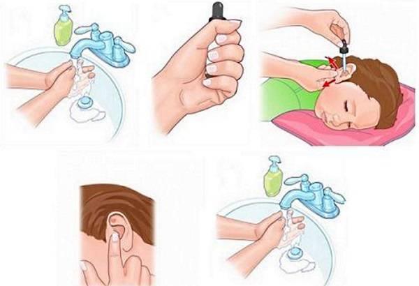 как правильно закапывать уши