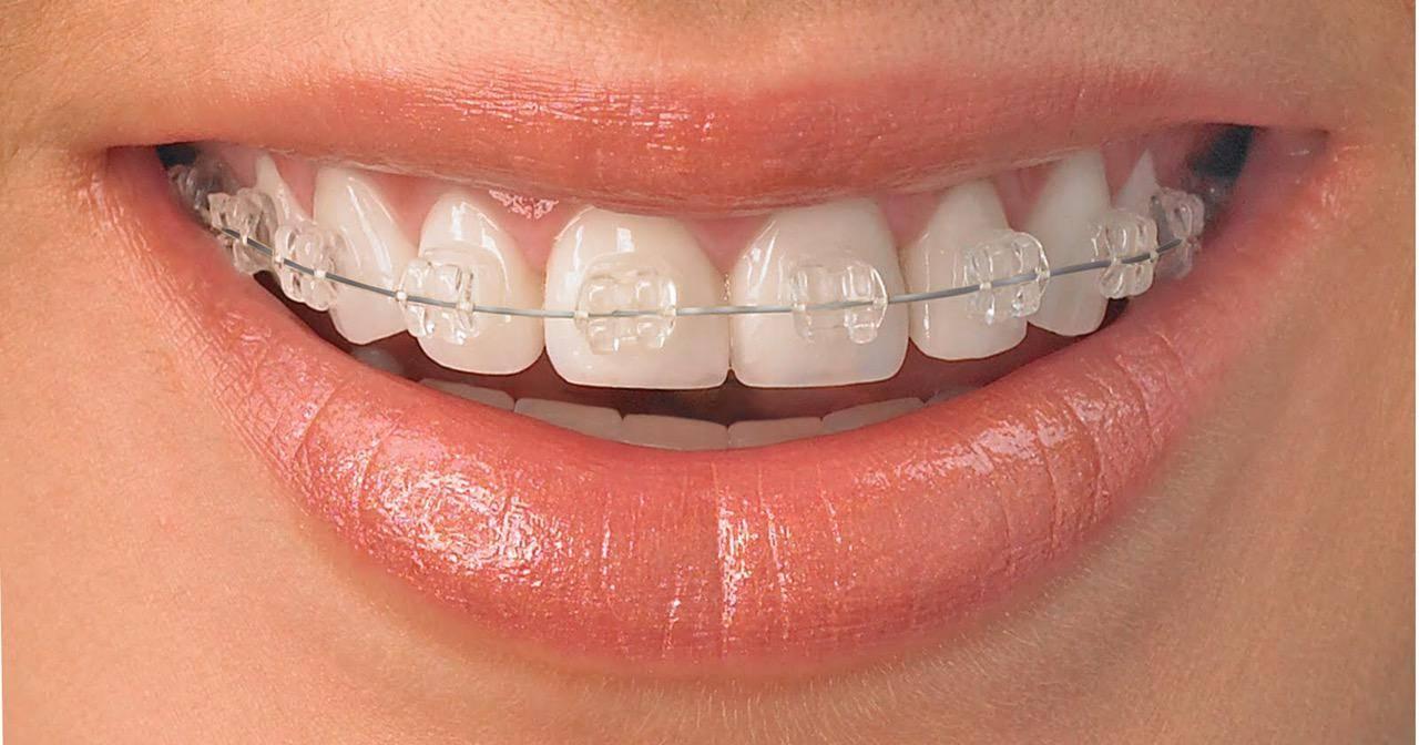 Ортодонтическое лечение нужно и возможно только в детском или подростковом возрасте