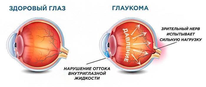 Глаукома: эффективное лечение народными средствами