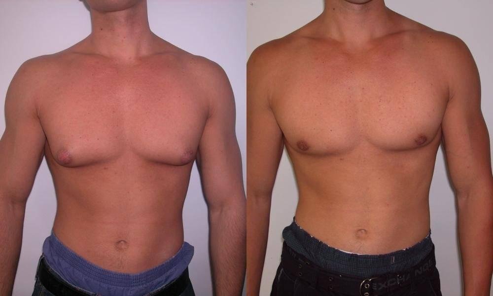 гинекомастия у мужчин лечение