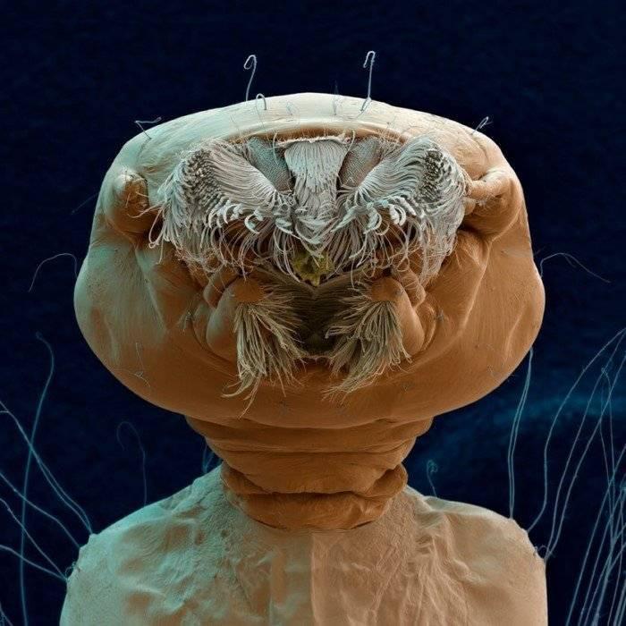 Паразиты в головном мозге человека — parazit24