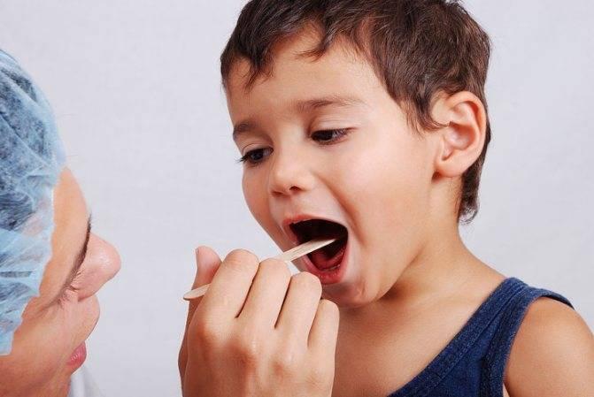 Неприятный запах из носа у ребенка: вопросы по отоларингологии