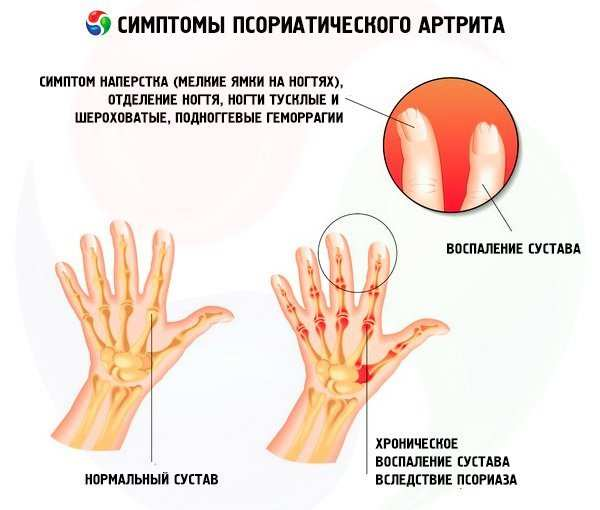 Артропатический псориаз. my-doktor.ru