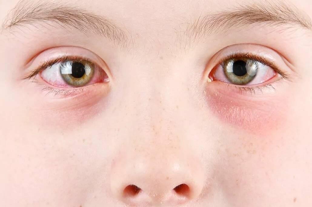 Глаза покраснели и слезятся и болят