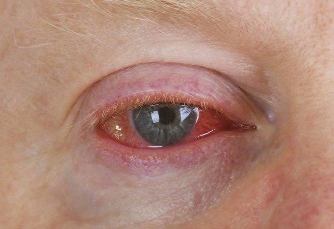 От линз краснеют глаза: что делать при симптоме, причины и лечение
