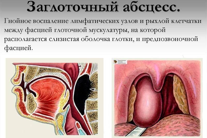 симптомы заглоточного абсцесса
