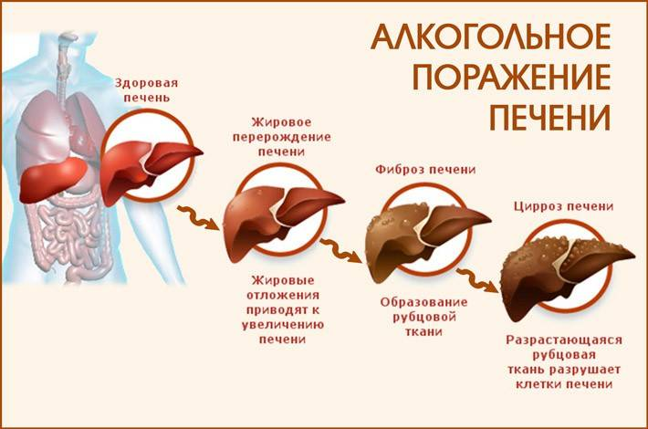 Как восстанавливается печень при гепатите с